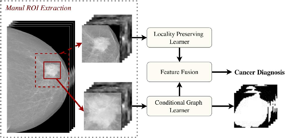 Figure 2 for Dual Convolutional Neural Networks for Breast Mass Segmentation and Diagnosis in Mammography