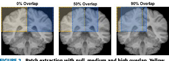 Figure 3 for Quantitative analysis of patch-based fully convolutional neural networks for tissue segmentation on brain magnetic resonance imaging