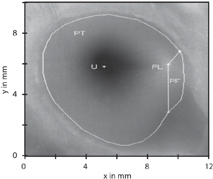 Anatomical And Mechanical Properties Of The Tympanic Membrane