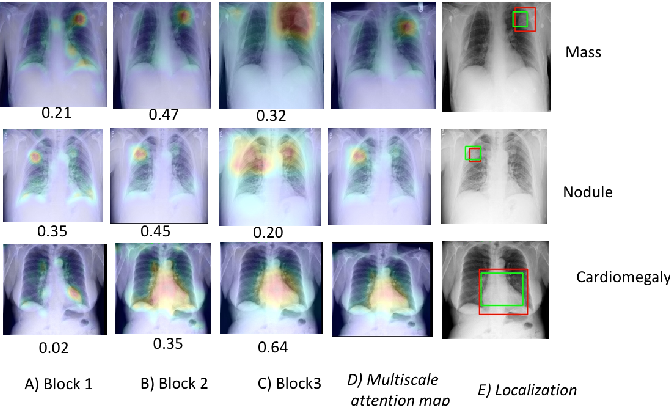 Figure 3 for Deep multiscale convolutional feature learning for weakly supervised localization of chest pathologies in X-ray images