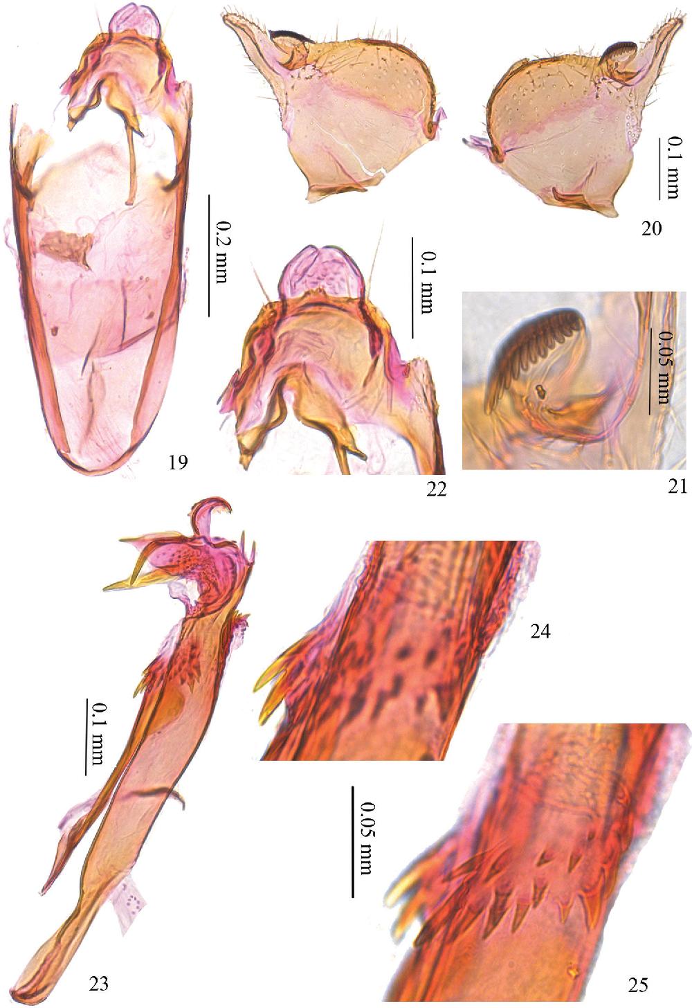 figure 19–25