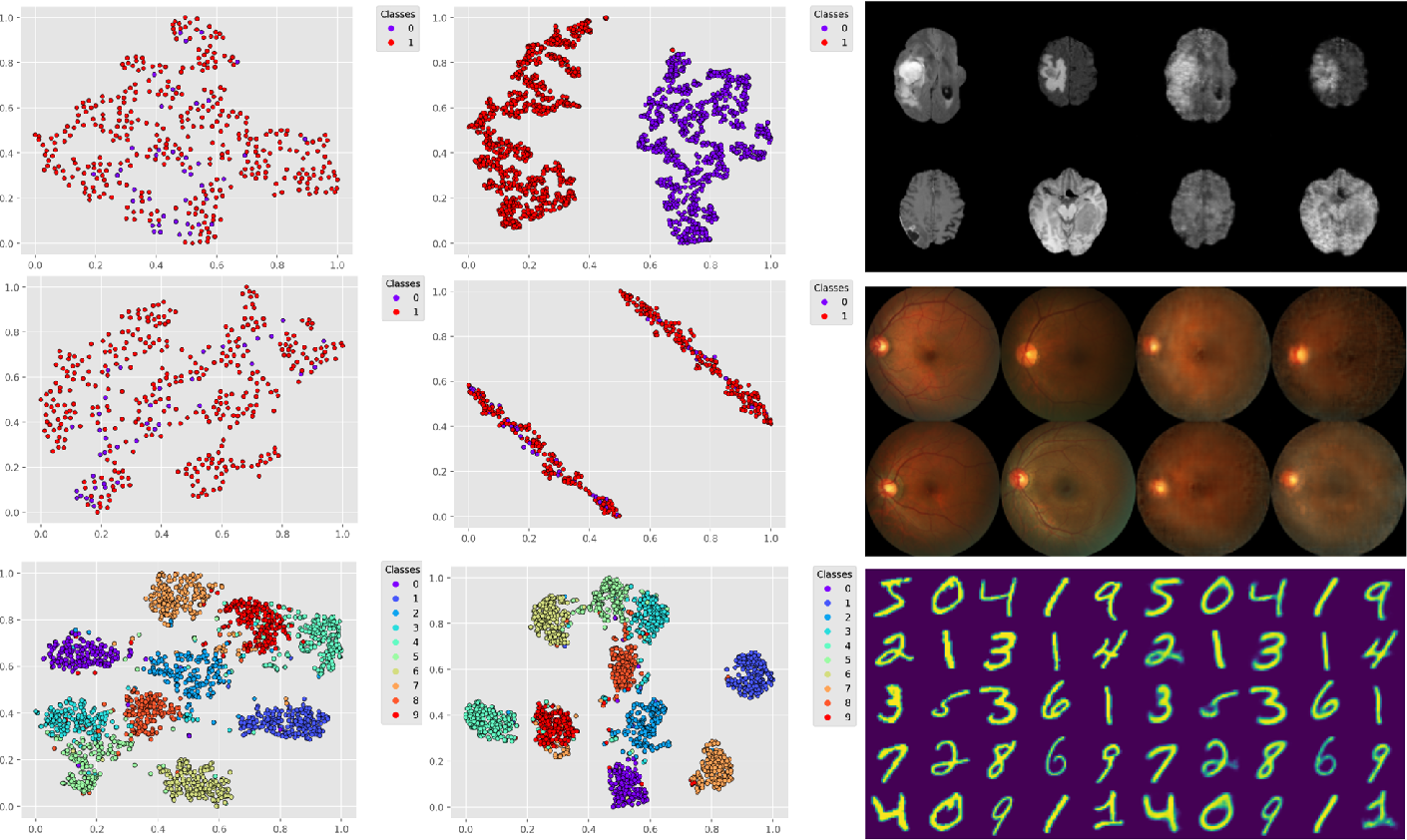 Figure 2 for Deep Variational Clustering Framework for Self-labeling of Large-scale Medical Images