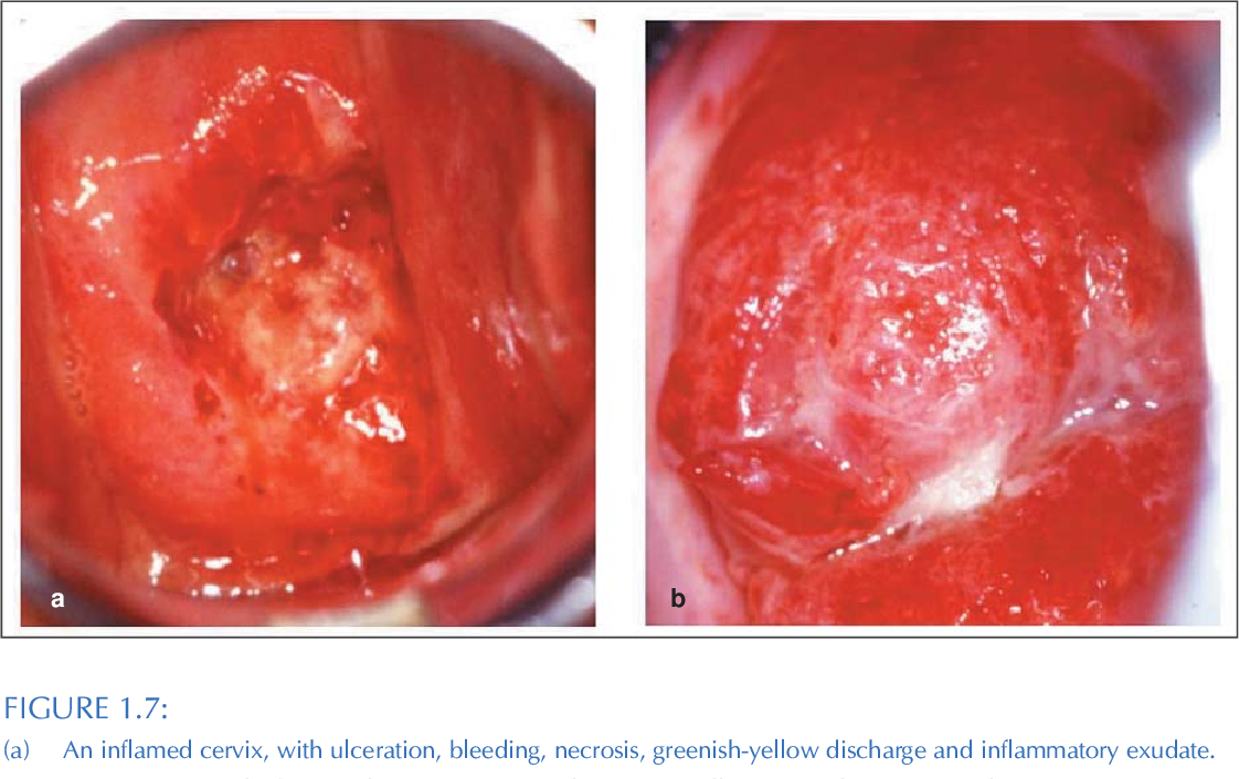A practical manual on visual screening for cervical