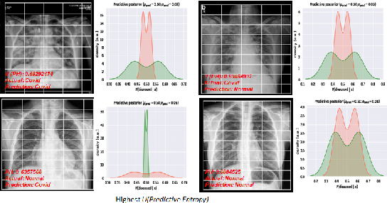 Figure 1 for Estimating Uncertainty and Interpretability in Deep Learning for Coronavirus (COVID-19) Detection