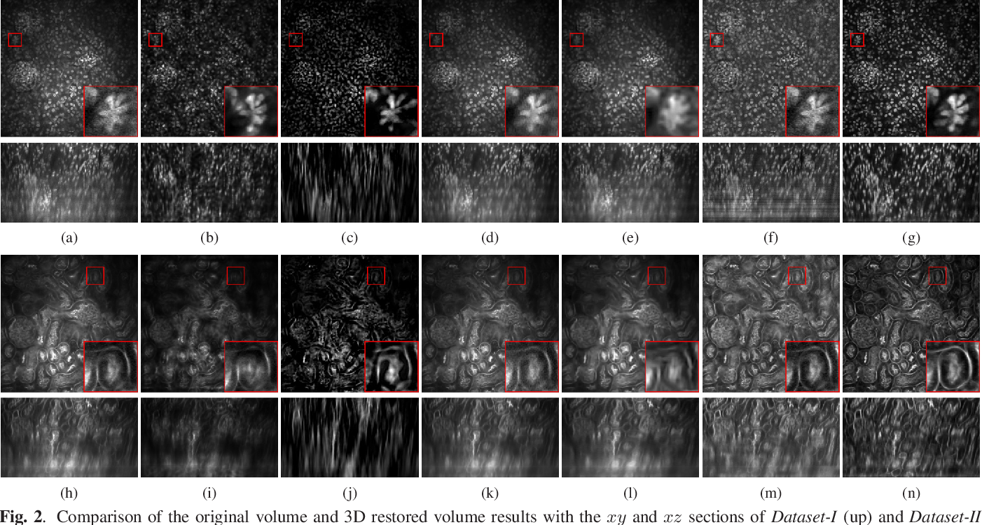 Figure 3 for Three dimensional blind image deconvolution for fluorescence microscopy using generative adversarial networks