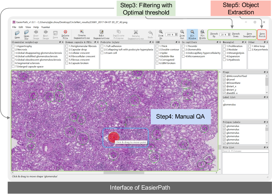 Figure 3 for EasierPath: An Open-source Tool for Human-in-the-loop Deep Learning of Renal Pathology