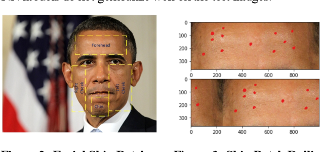 Figure 3 for A Computer Vision Application for Assessing Facial Acne Severity from Selfie Images