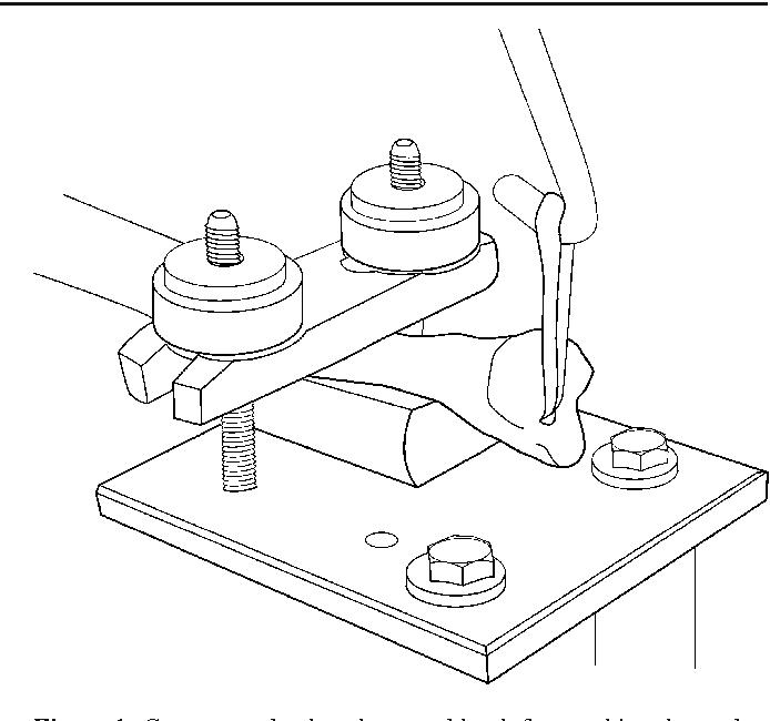 Tendon Graft Ulna Fixation In Distal Radio Ulnar Joint