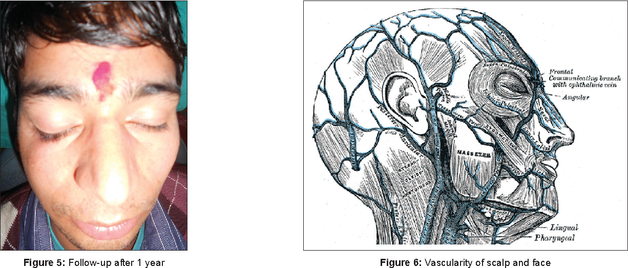 Figure 5 from Osteomyelitis of zygoma secondary to depressed ...