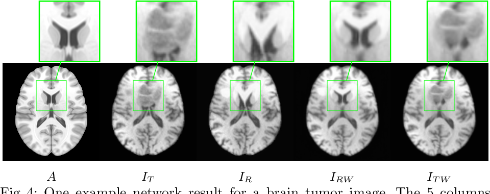 Figure 4 for A Deep Network for Joint Registration and Reconstruction of Images with Pathologies