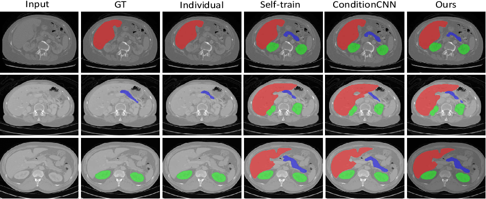 Figure 4 for Multi-organ Segmentation via Co-training Weight-averaged Models from Few-organ Datasets