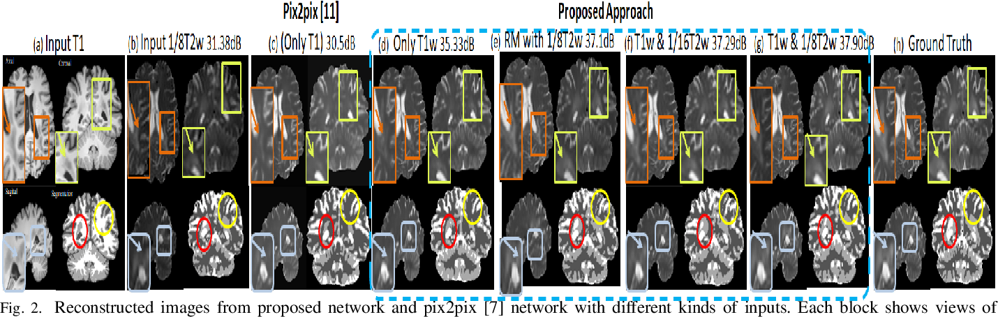 Figure 2 for Semantic Features Aided Multi-Scale Reconstruction of Inter-Modality Magnetic Resonance Images