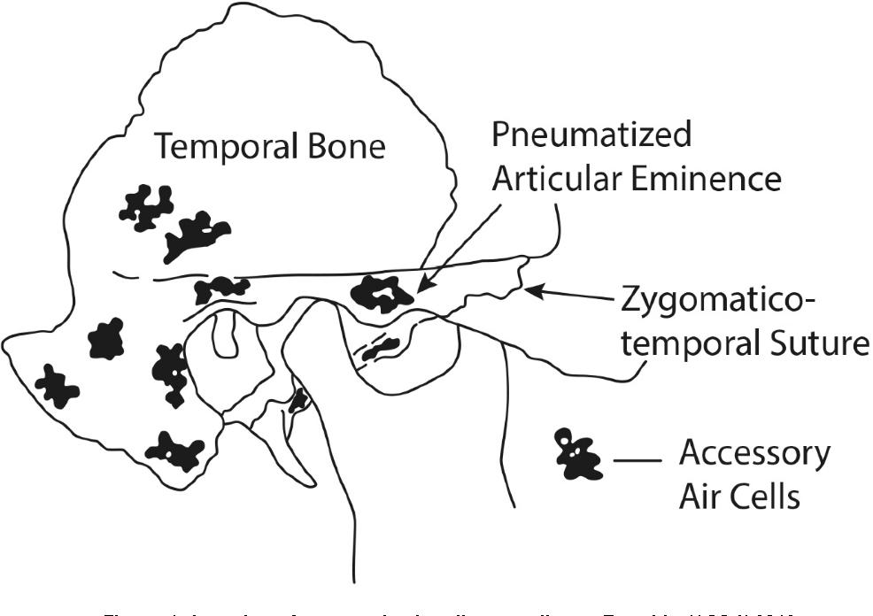 Pneumatization of the zygomatic process of temporal bone on computed ...
