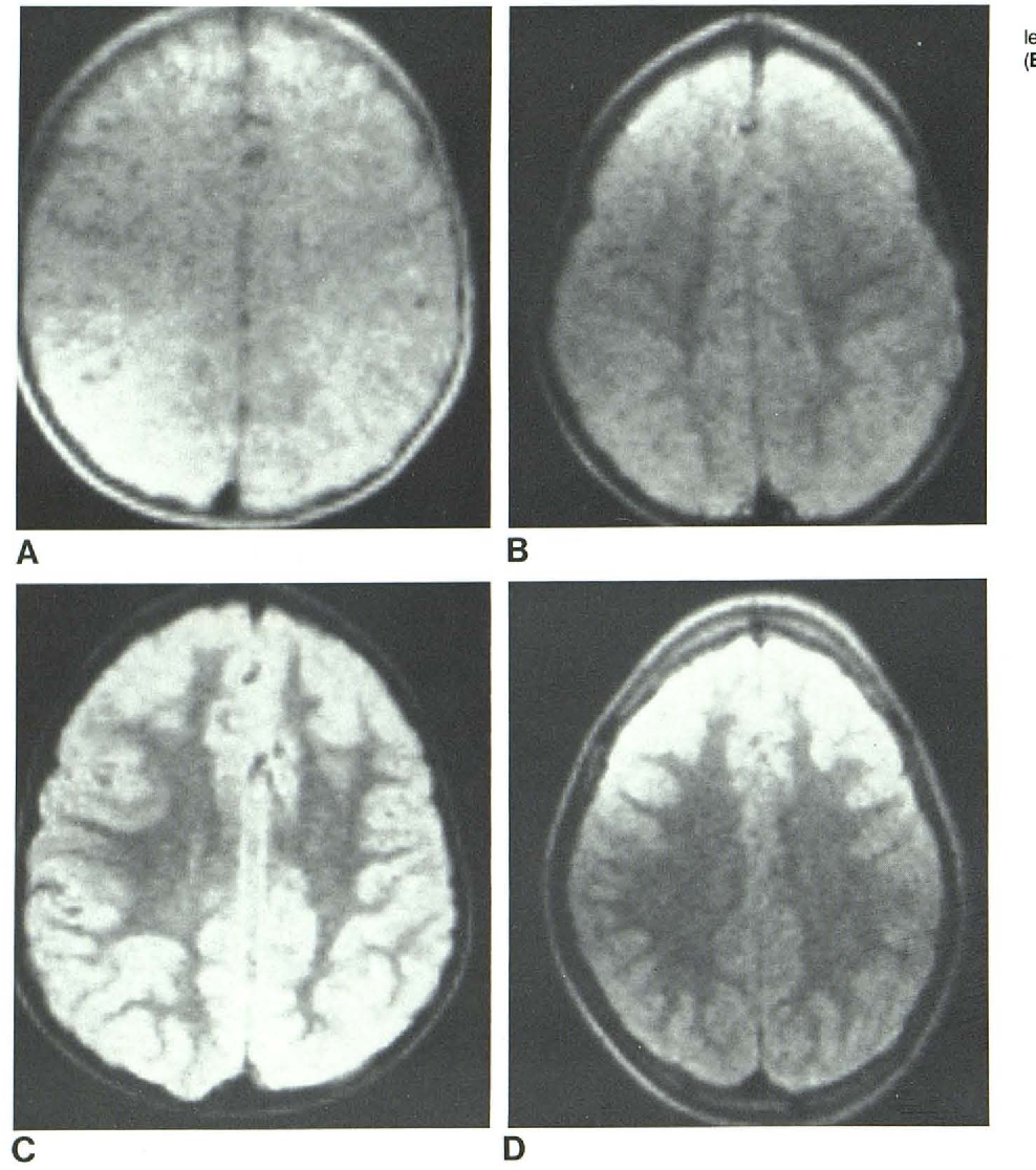 Figure 5 from MRI of normal brain maturation. - Semantic Scholar