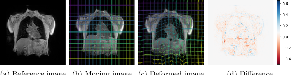 Figure 4 for Linear and Deformable Image Registration with 3D Convolutional Neural Networks