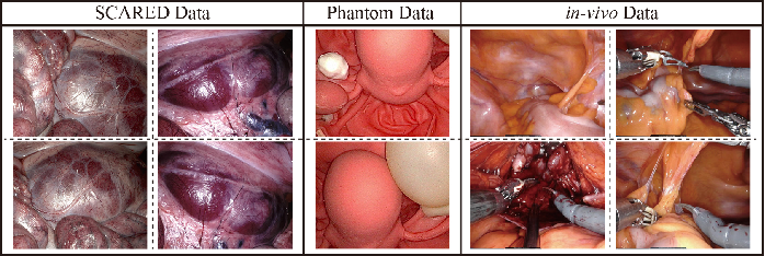 Figure 2 for Stereo Dense Scene Reconstruction and Accurate Laparoscope Localization for Learning-Based Navigation in Robot-Assisted Surgery