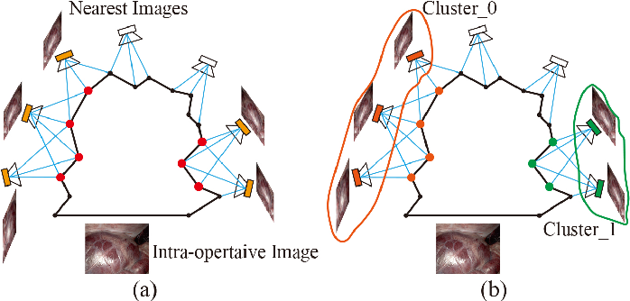 Figure 4 for Stereo Dense Scene Reconstruction and Accurate Laparoscope Localization for Learning-Based Navigation in Robot-Assisted Surgery