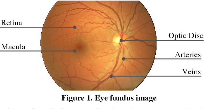 Figure 1 From Automatic Segmentation Of Optic Disc In Eye