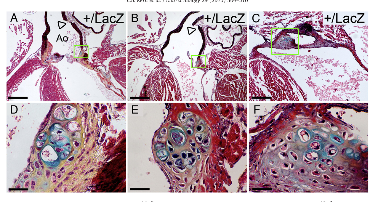 Fig. 3. Cartilage-like nodules develop in the valvular sinus of Adamts9+/LacZ hearts. Frontal sections stained with Movat pentachrome of Adamts9+/LacZ hearts ages 9 (A,D), 15 (B,E) and 24 (C,F) weeks are shown. The areas within the green boxes in A, B, C are shown at higher magnification in D, E, and F respectively. The cells surrounded by bluematrix, indicative of sulfated proteoglycans, are in large lacunae, surrounded by collagen (yellow). Boxes in G,H are shownmagnified in the respective inset. Arrowheads (A, B) denote fractured aortic walls observed in all Adamts9+/LacZ mice (n=15). Ao—aorta; SLV—semi-lunar valve; At—atrium. Magnification bars: A, B=475 µm; C=200 µm; D–F=30 µm.