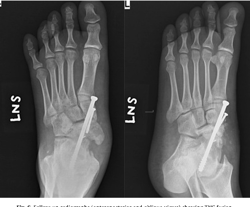 Figure 6 From Spontaneous Osteonecrosis Of Navicular And Talus