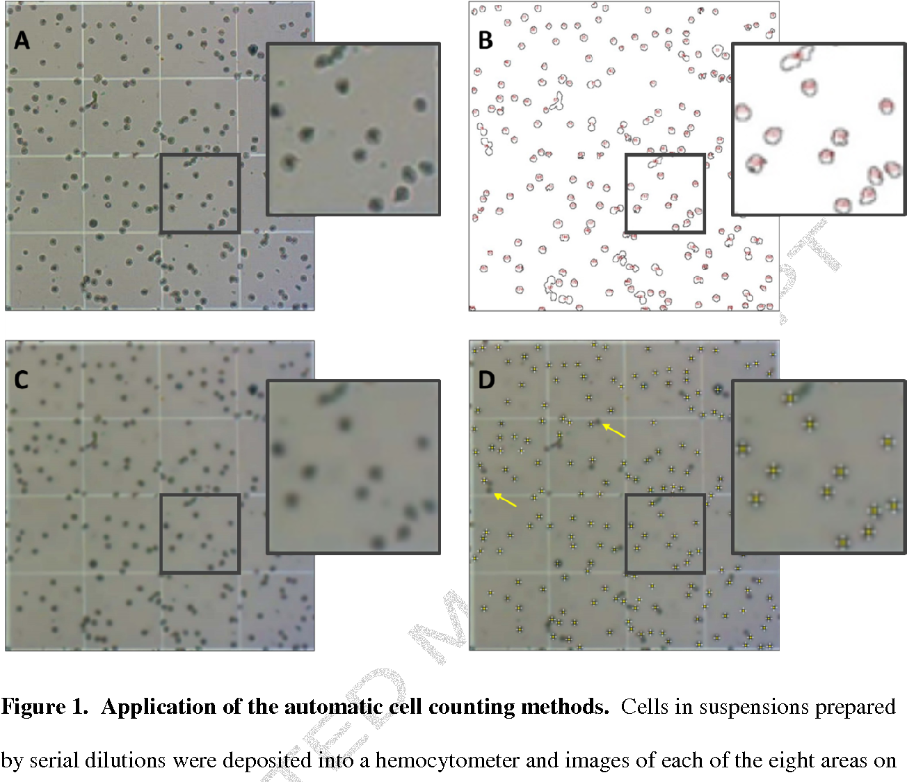 Figure 1 from Automatic cell counting with ImageJ
