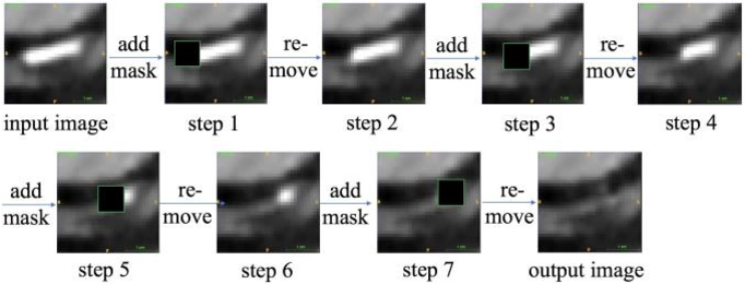 Figure 2 for Calcium Removal From Cardiac CT Images Using Deep Convolutional Neural Network