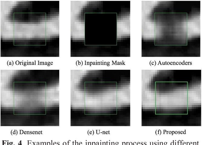 Figure 4 for Calcium Removal From Cardiac CT Images Using Deep Convolutional Neural Network