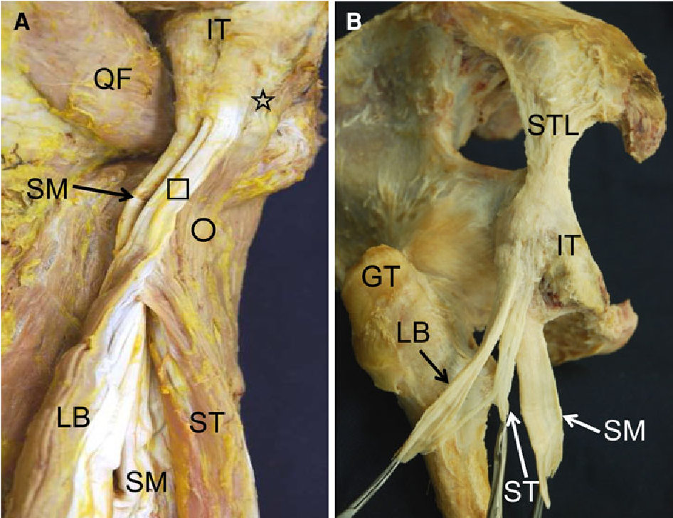 Figure 1 from Anatomical study of the proximal origin of hamstring ...