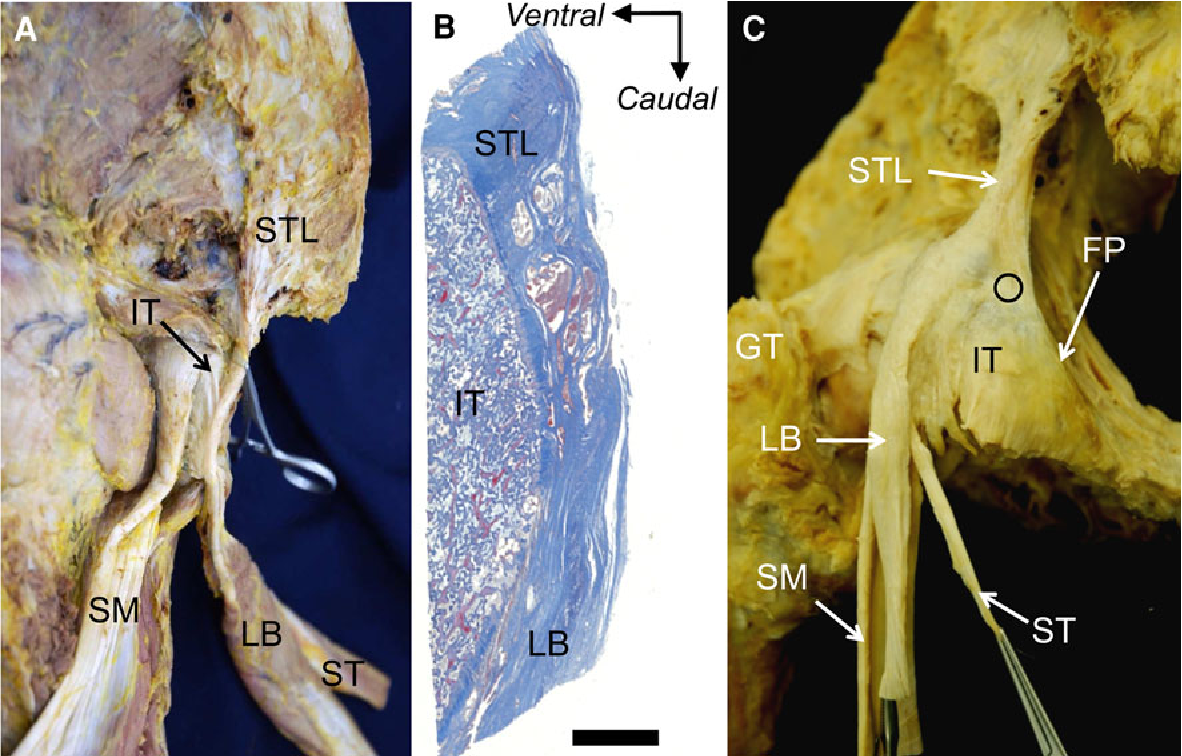 Figure 2 from Anatomical study of the proximal origin of hamstring ...