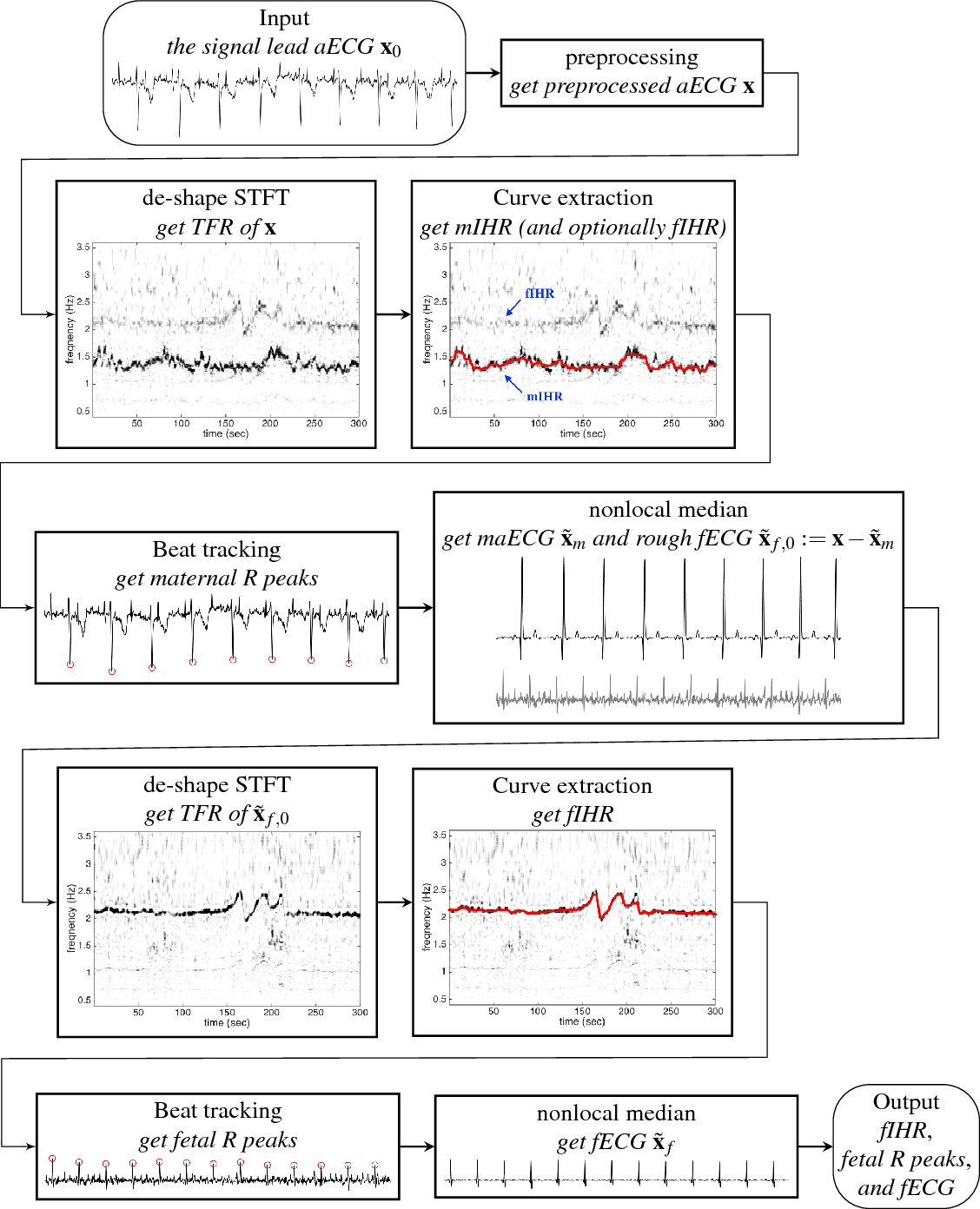 Figure 1 for Extract fetal ECG from single-lead abdominal ECG by de-shape short time Fourier transform and nonlocal median