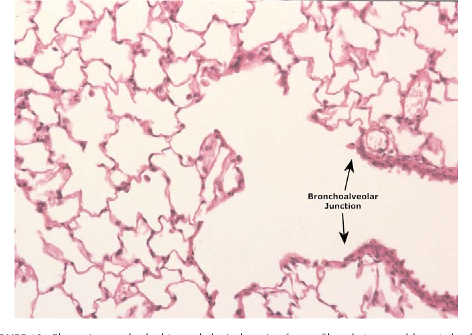 Figure 19 from Comparison of Calidria chrysotile asbestos to