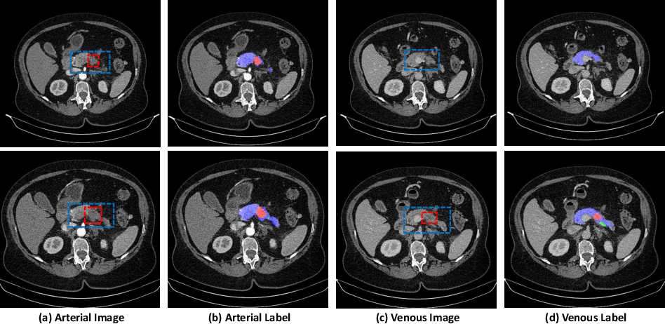 Figure 1 for Detecting Pancreatic Adenocarcinoma in Multi-phase CT Scans via Alignment Ensemble