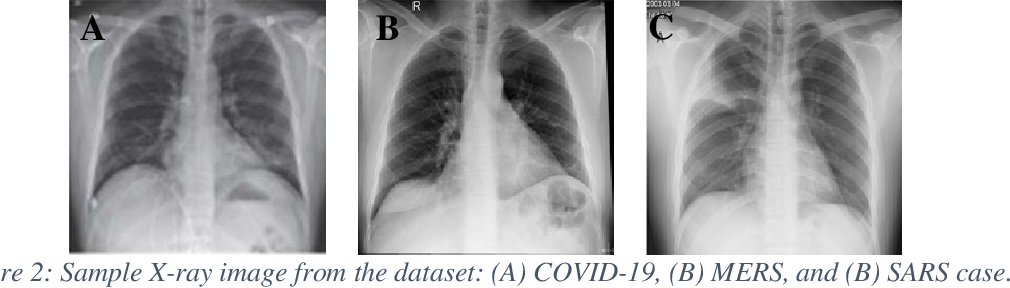 Figure 3 for Coronavirus: Comparing COVID-19, SARS and MERS in the eyes of AI