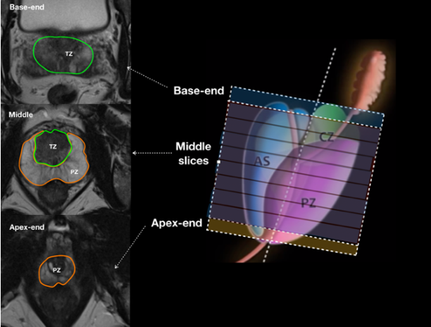 Figure 2 for Automatic Prostate Zonal Segmentation Using Fully Convolutional Network with Feature Pyramid Attention
