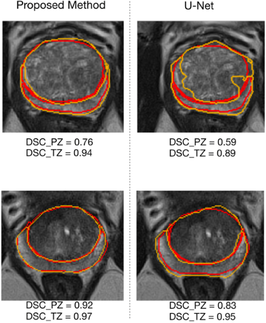 Figure 4 for Automatic Prostate Zonal Segmentation Using Fully Convolutional Network with Feature Pyramid Attention