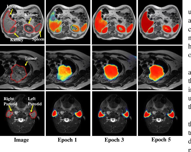 Figure 3 for PSIGAN: Joint probabilistic segmentation and image distribution matching for unpaired cross-modality adaptation based MRI segmentation