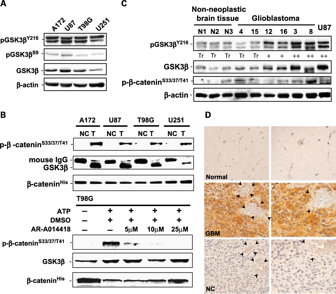 Fig. 1. Expression, phosphorylation, and activity of GSK3h in glioblastoma cells and tumor tissues. A, GSK3h and its fractions pGSK3hY216 (active form) and pGSK3hS9 (inactive form) were detected in protein extracts from the indicated glioblastoma cell lines byWestern immunoblotting analysis. B, GSK3h activity, an ability to phosphorylate its substrate (h-catenin), in the glioblastoma cells was detected by NRIKA (22). GSK3h was isolated from1-mg aliquots of each sample cell lysate by immunoprecipitation. In vitro kinase reaction was then carried out in the presence of immunoprecipitated cellular GSK3h, its substrate recombinant human h-catenin protein (h-cateninHis), and nonradioisotopic ATP.The resultant products were analyzed byWestern immunoblotting for phosphorylation of h-cateninHis at the residues serine 33 and 37 and/or threonine 41 (p-h-cateninS33/37/T41). As a negative control reaction (NC) for each cell line, the mouse monoclonal antibody to GSK3h was replaced by an equal amount of nonimmunemouse IgGin the immunoprecipitation step. GSK3h activity is shown in all glioblastoma cells by expressionof p-h-cateninS33/37/T41in the test lanes (T) andby the observation of little or no expression of p-h-cateninS33/37/T41in the negative control reaction.The amount of GSK3h and the presence of h-cateninHis in the kinase reaction were monitored by immunoblotting with mousemonoclonal antibodies to GSK3h and h-catenin, respectively.The bottom panels show the effect of a small-molecule GSK3h inhibitor (AR-A014418) on cellular GSK3h activity inT98G cells. In the NRIKA, kinase reaction was carried out in the presence of DMSO or different concentration of AR-A014418 at 37jC for 30 min.The presence of AR-A014418 inhibited the ability ofT98G cell ^ derived GSK3h to phosphorylate h-cateninHis. C, expression of GSK3h, pGSK3hY216, and p-h-cateninS33/37/T41in surgical specimens removed from patients. A higher expression of GSK3h and pGSK3hY216 was frequently found in the tumors (in