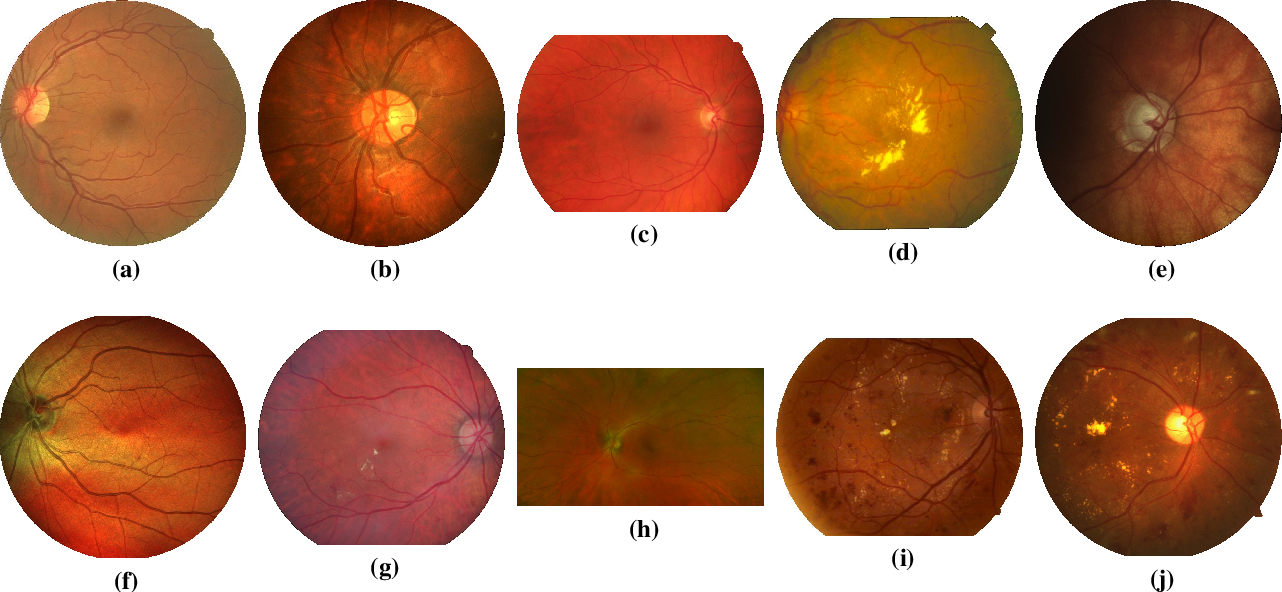Figure 1 for The Little W-Net That Could: State-of-the-Art Retinal Vessel Segmentation with Minimalistic Models