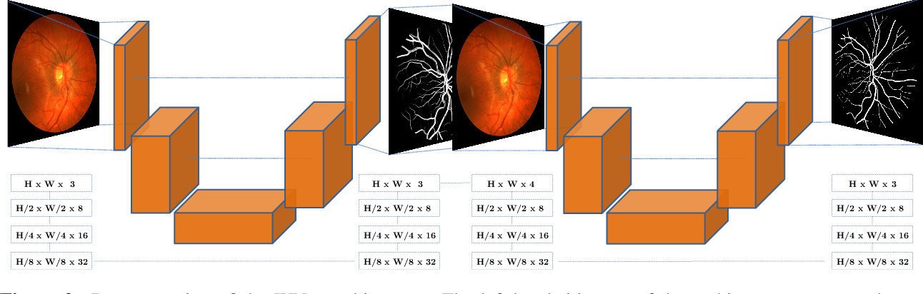 Figure 3 for The Little W-Net That Could: State-of-the-Art Retinal Vessel Segmentation with Minimalistic Models