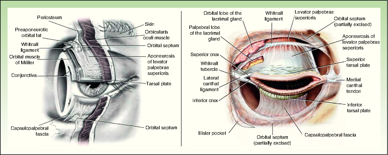 Figure 1 From Oncologic Surgery Of The Eyelid And Orbital Region