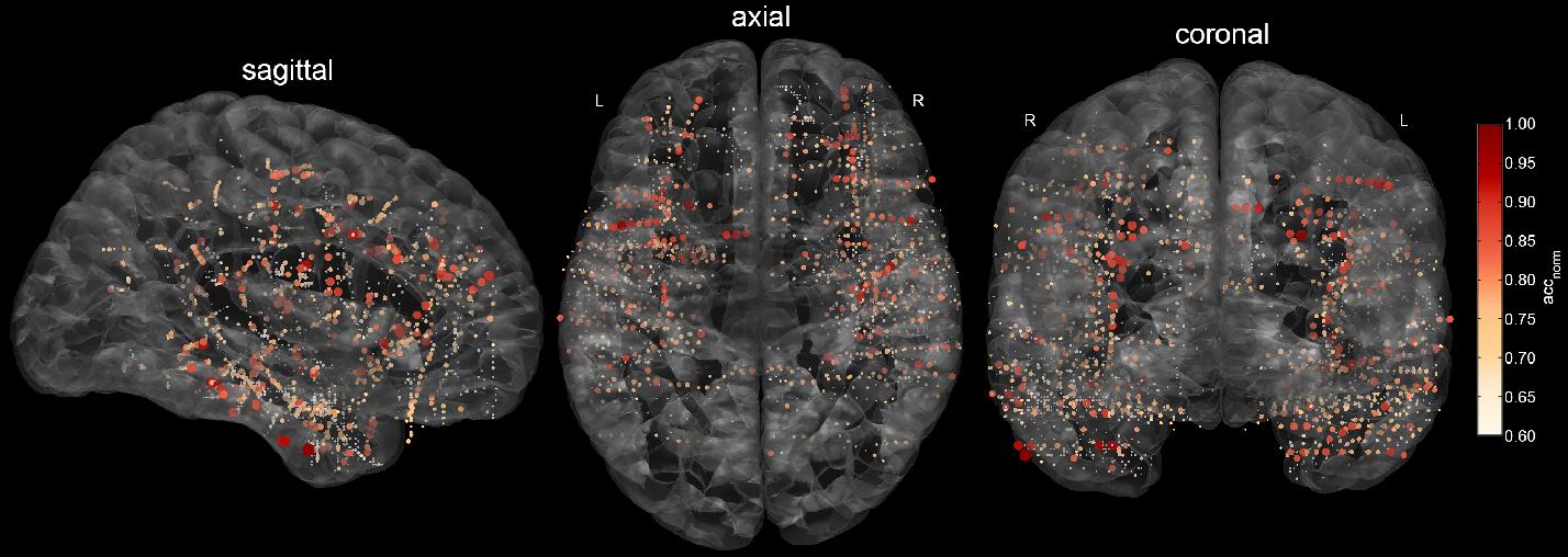 Figure 1 for Intracranial Error Detection via Deep Learning