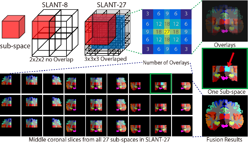 Figure 3 for Spatially Localized Atlas Network Tiles Enables 3D Whole Brain Segmentation from Limited Data