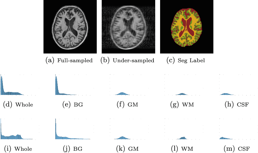 Figure 1 for A Segmentation-aware Deep Fusion Network for Compressed Sensing MRI