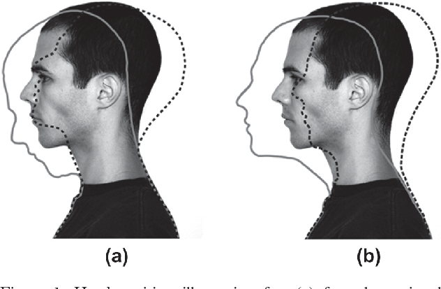 Observational study of differences in head position for high notes