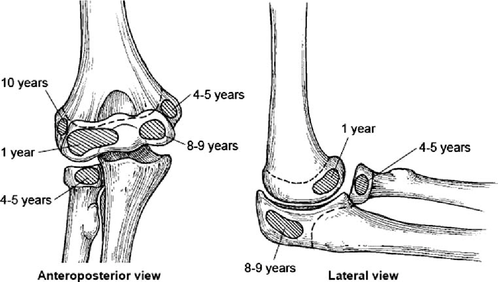 Figure 1 From Pediatric Supracondylar Fractures Of The Distal