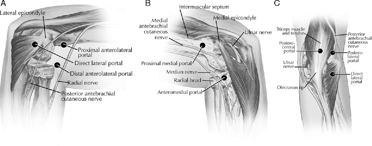 Figure 1 from Complications of elbow and wrist arthroscopy ...