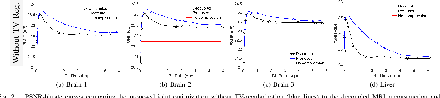 Figure 2 for Regularized Compression of MRI Data: Modular Optimization of Joint Reconstruction and Coding
