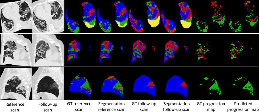Figure 4 for Longitudinal Quantitative Assessment of COVID-19 Infection Progression from Chest CTs