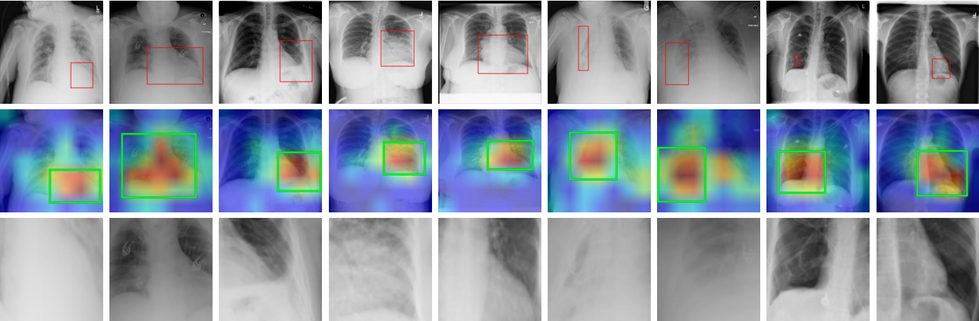 Figure 3 for Diagnose like a Radiologist: Attention Guided Convolutional Neural Network for Thorax Disease Classification