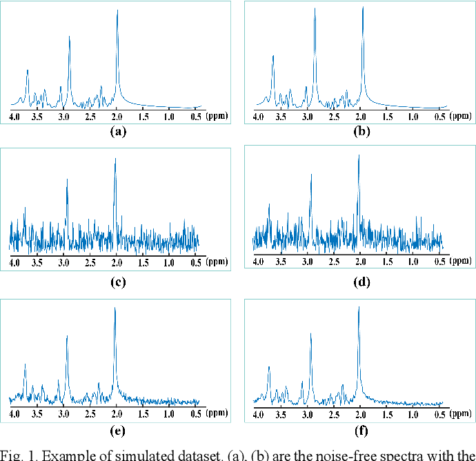 Figure 1 for Denoising Single Voxel Magnetic Resonance Spectroscopy with Deep Learning on Repeatedly Sampled In Vivo Data